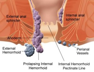 how-to-get-rid-of-hemorrhoids
