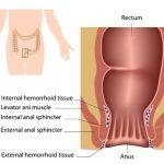 symtoms-of-hemorrhoids-2